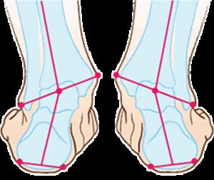 引用: http://foot-clinic.jp/foot01.html